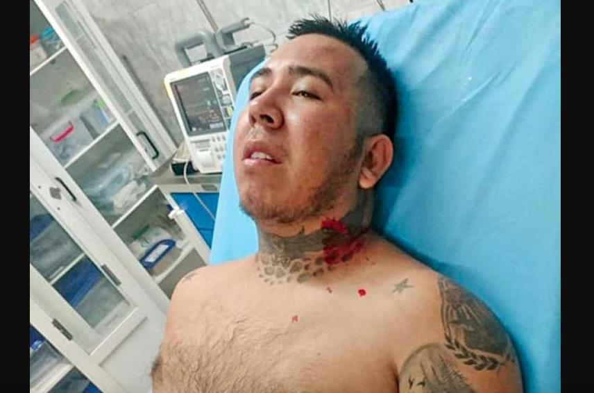EL DETENIDO JHON JAIRO DURÁN SE RECUPERA EN UN HOSPITAL DE CÚCUTA.